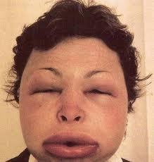 alergia a la amoxicilina - reacciones inmediatas 2