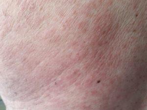 alergia a la amoxicilina - reacciones tardias 3