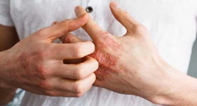 picazón en las manos como resultado de la alergia a la amoxicilina